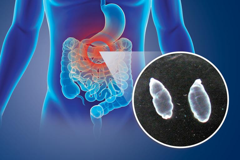 Larvas de solitaria, aliadas contra el cáncer de colon.(GACETA UNAM) Video